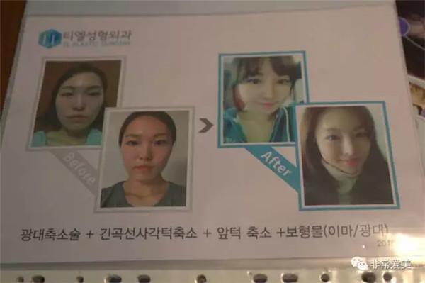 哪里整形比较好?韩国整容黑幕频频,4招带你趟出一条变美路!