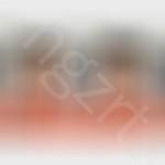 发际线前移手术对比照片,没有了突出的尖额头,脸型是不是自然漂亮了很多