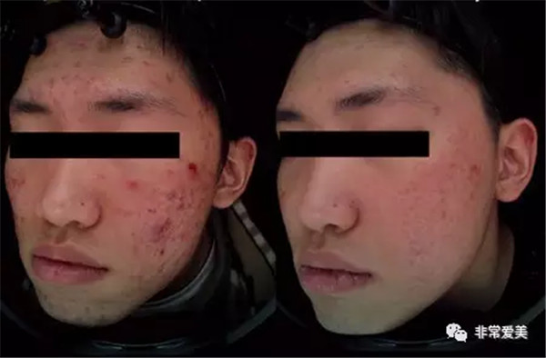 激光祛痘后会有后遗症吗?都说韩国妹子皮肤好,其实她们保养皮肤的秘诀在这里!