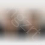 硅胶假体隆鼻效果,鼻子是面部五官之王,对衬托脸型和五官起很大的作用