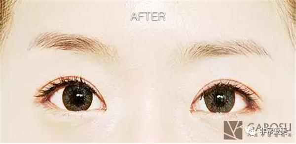 """割双眼皮的良好年龄是什么时候?天呐!你敢信只做了双眼皮就能有""""换脸""""的效果吗?"""