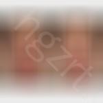瘦脸针注射瘦脸效果图,瘦脸针瘦脸见效慢一点,但是效果很自然