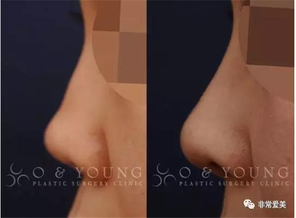 假体隆鼻整形失败怎么办?只因隆鼻假体漏出,19岁女孩从此无缘模特梦!
