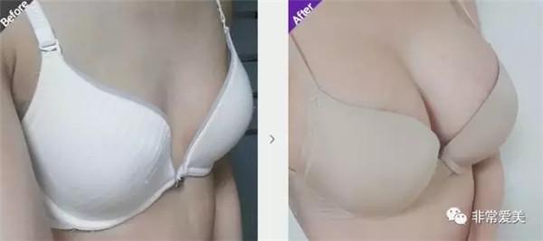 假体隆胸手术效果保持多久?麦恩丰胸照片对比,韩国技术好主要依靠这几点!