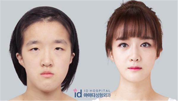首尔哪家医院隆鼻好?ID怎么样?