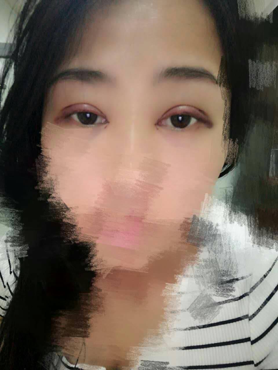 双眼皮加开眼角前后对比效果案例,感觉像变了一个人一样