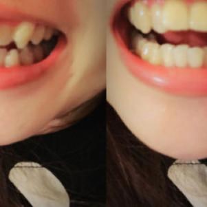 我的牙齿矫正历程。
