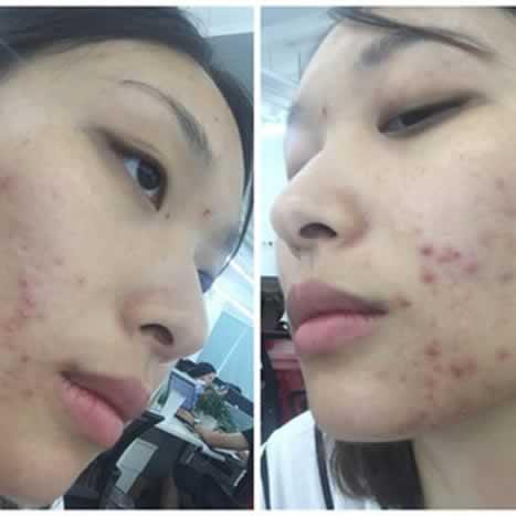 继续更新分享我的果酸换肤经历哦。