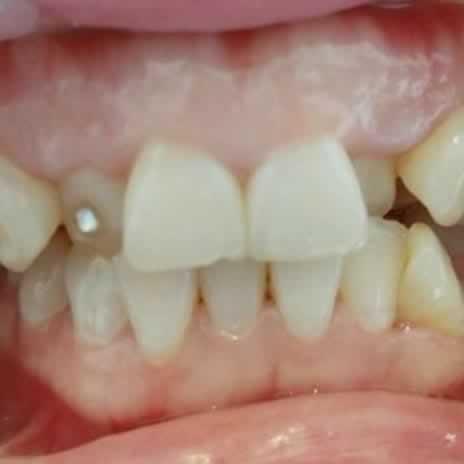 我的牙齿矫正过程,等的好漫长的...