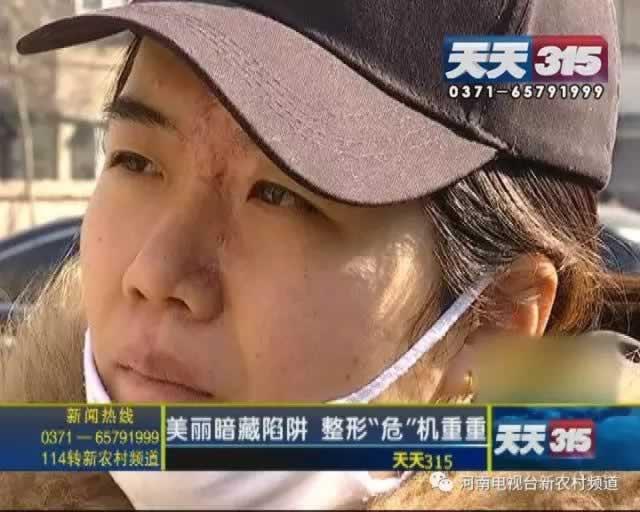 女子整容脸部血流不止 打玻尿酸时扎到动脉血管