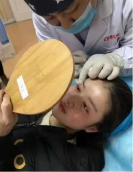 女孩偷百万去整容成杨颖,网友直呼辣眼睛