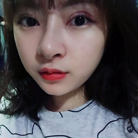 韩式假体隆鼻怎么样,觉得自己恢复挺快的