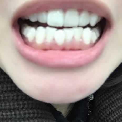 隐形矫正牙套有用吗,来看看我经历就知道了。