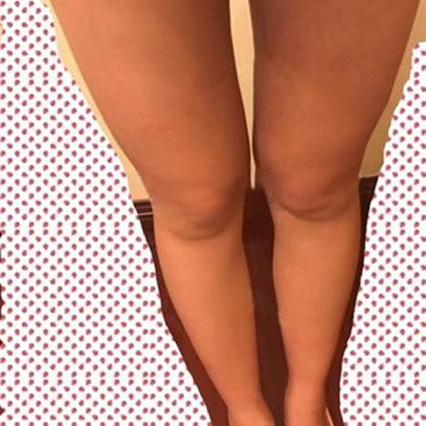 大腿吸脂恢复过程,才一个月效果真的好的很啊。