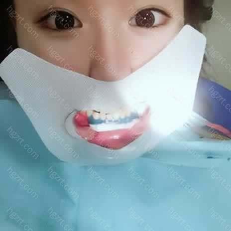 然后开始给我做清洁还对我里面两颗小蛀牙格外关照了下