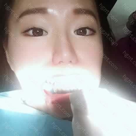 他反复确认我牙垫位置舒适度