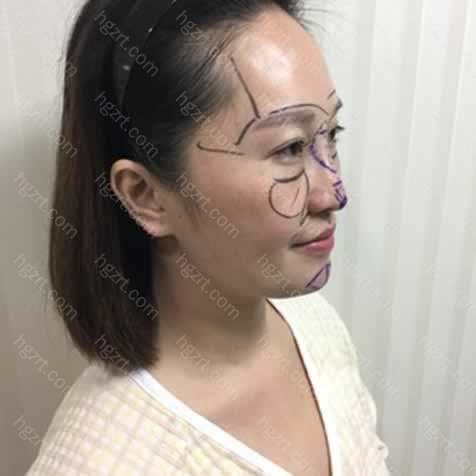 面部综合整形是什么