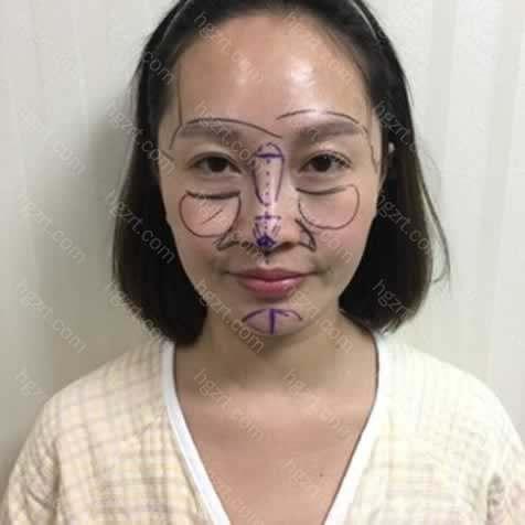 中国的助理把我的照片基础情况发给韩国院长