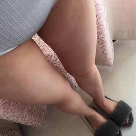 大腿吸脂能瘦多少厘米,大家来看看我的日记就知道了