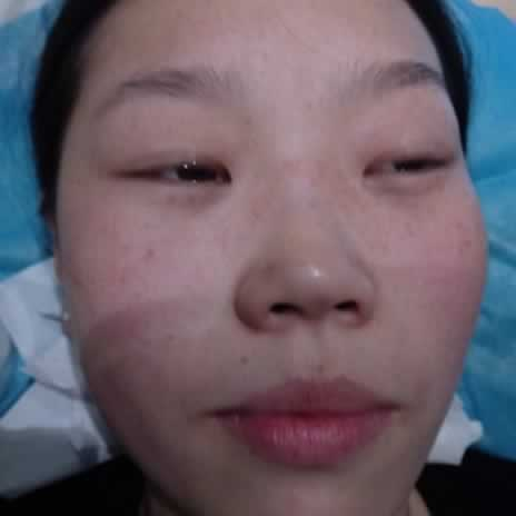 激光祛斑后会反弹吗?做好防晒工作,注意保养就没有多大的问题了。