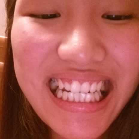 牙齿矫正会改变脸型吗?这要看你的牙突不突了。