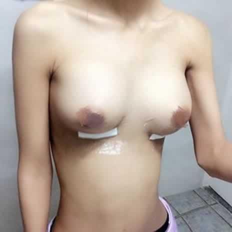 隆胸手术会变形吗?这也是我担心的问题呢。但是医生说技术好的话是没有问题的。