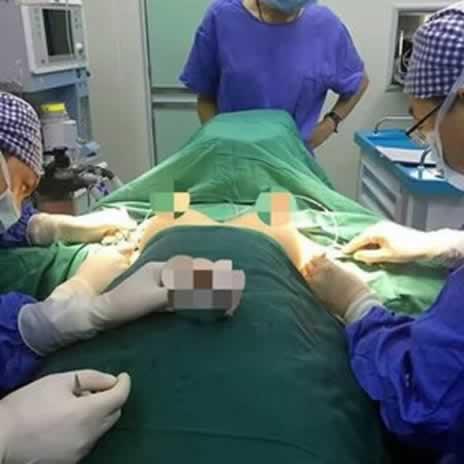 假体隆胸恢复过程辛苦,需要坚持呀,╮(╯▽╰)╭。