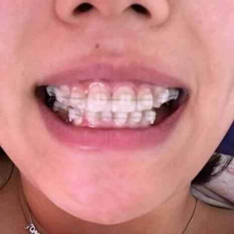 牙齿矫正会改变脸型么,好期待呀。