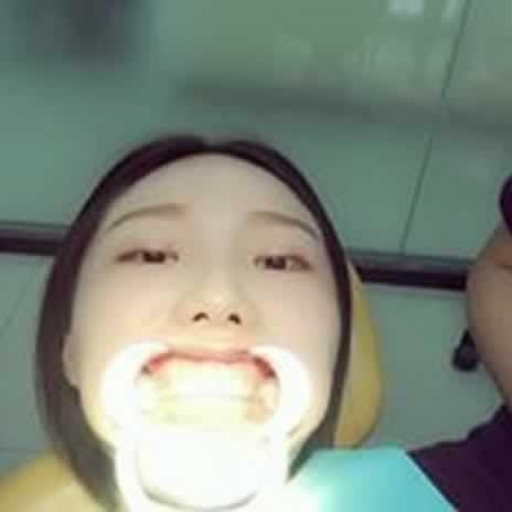 牙齿矫正需要拔牙吗?要根据同学们自己的情况而定哦。