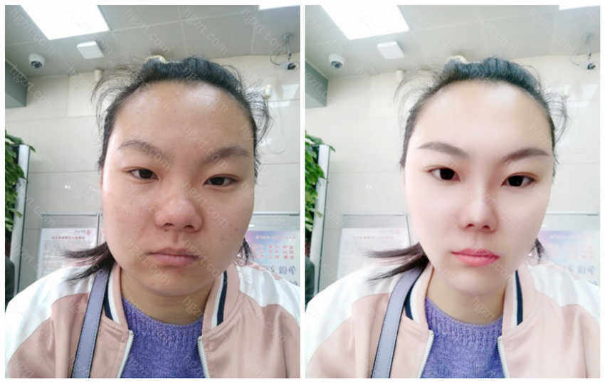 瘦脸针加缩鼻整形模拟图