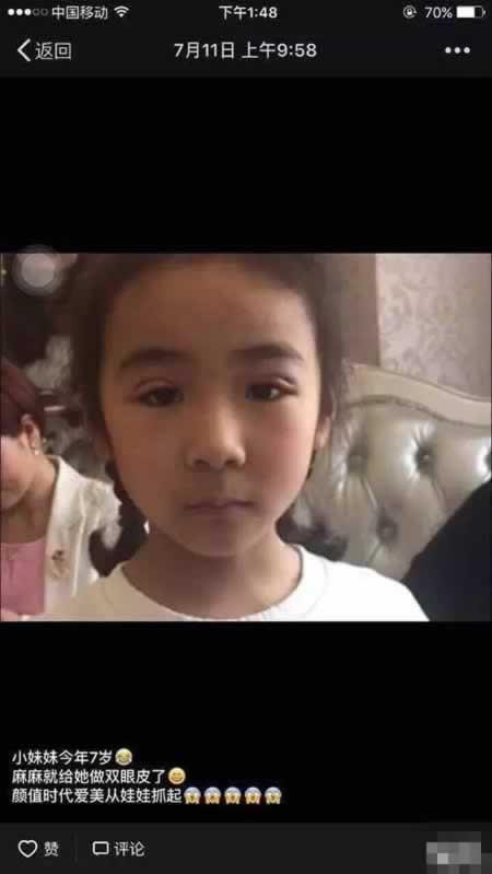 小女孩7岁就割双眼皮 这样真的好么