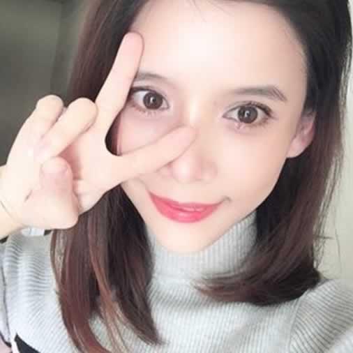 v-line瓜子脸手术多少钱