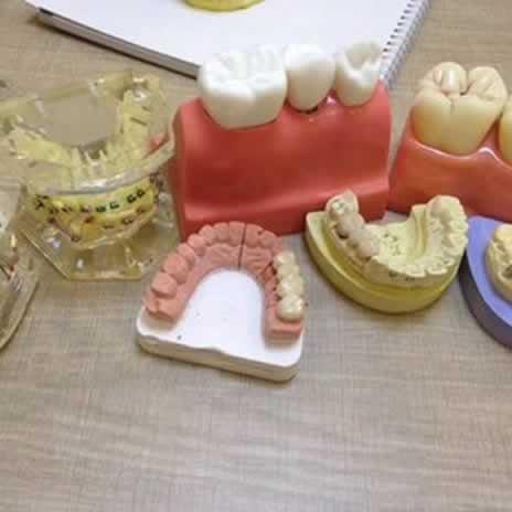 有人会问隐形牙套效果好吗?看看我的效果就知道了。
