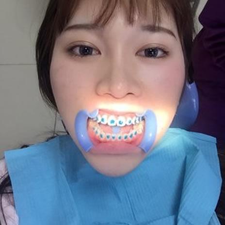 牙齿矫正前后,来看看我的变化吧。