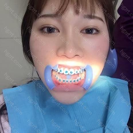 牙齿矫正前后