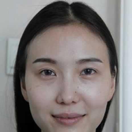 V-LINE手术瓜子脸女生适合的发型。