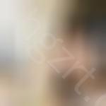 翘睫双眼皮手术是怎么做的,这是一个在校女大学生做眼部手术的亲身经历,想要了解手术的点开看,大概不吃亏哈……