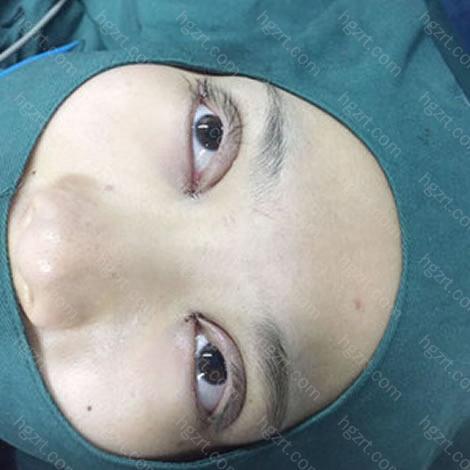 手术完成,医生拿镜子让我看眼睛,明显大了一圈哇,虽然肉条明晃晃。。。