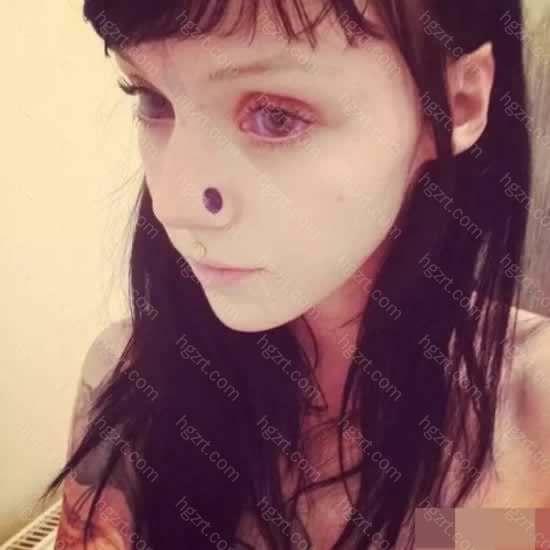 她又在下巴、脸颊、额头上都留下了这种疤痕
