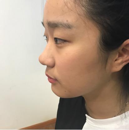 杭州格莱美眼部综合整形恢复过程