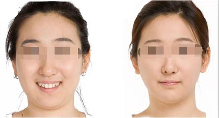 模拟瘦脸针效果前后对比图