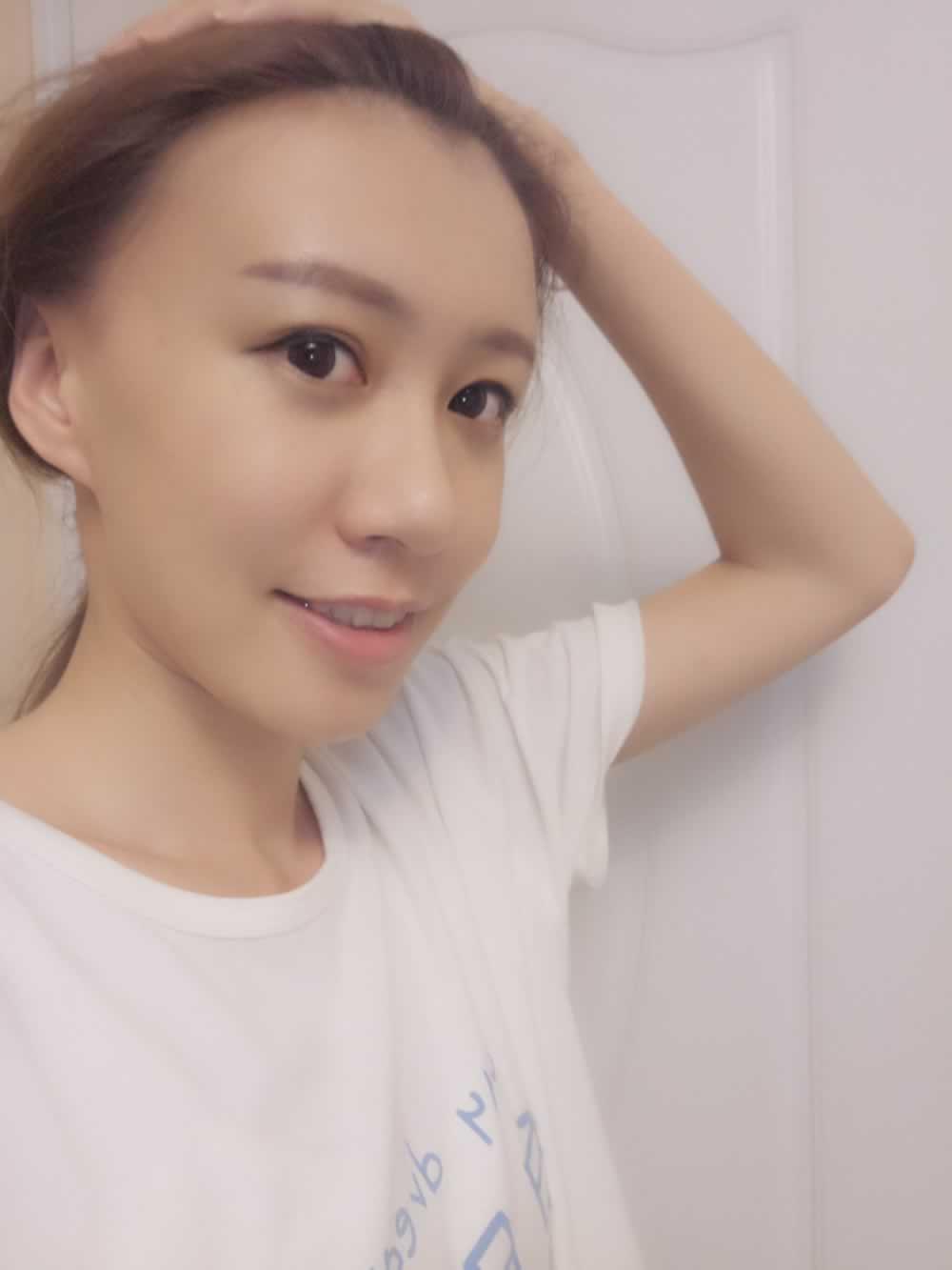 俺熊大也是抱着试试看的心态到美丽的大上海高大上的美立方整形院做的面部吸脂,面部吸脂瘦脸效果好吗
