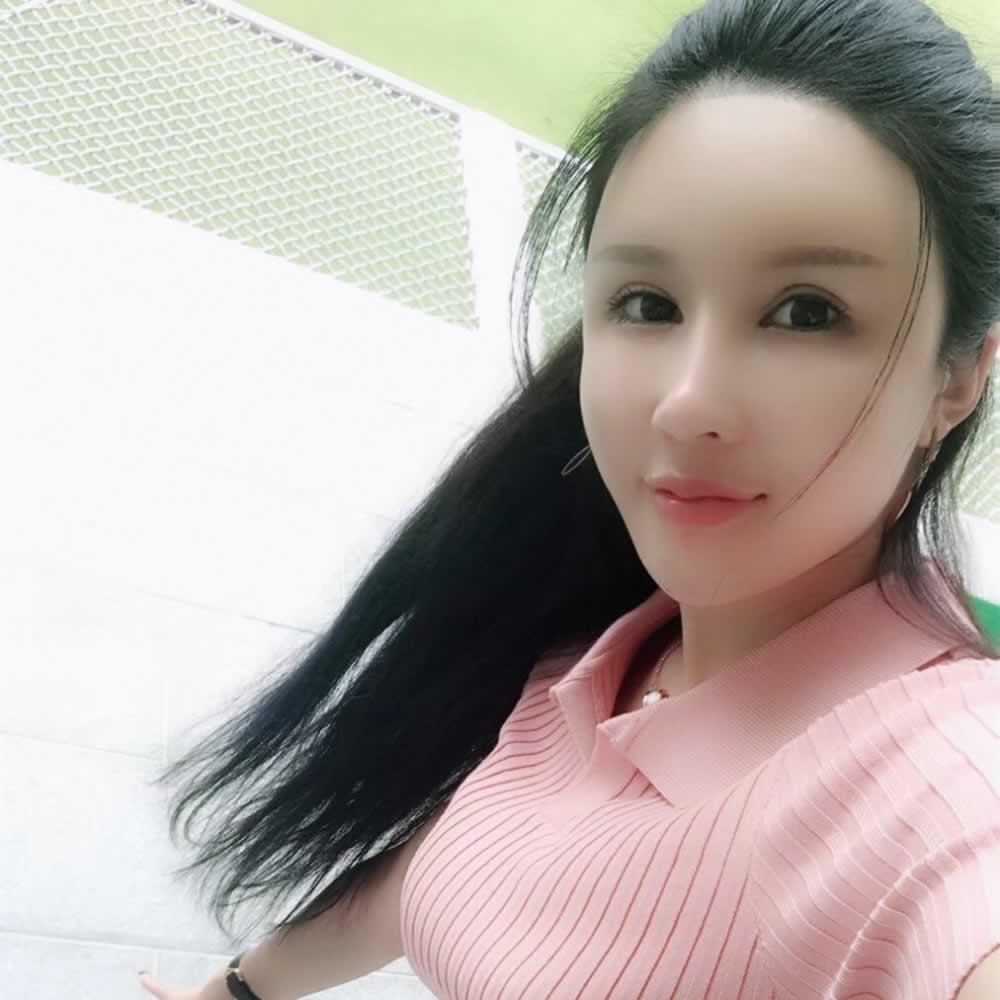 一个完美主义者在北京丽星整形做天填充太阳穴,苹果机和额头