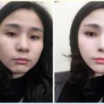 预想韩式改脸型手术效果图