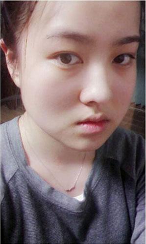 小P孩们来看北京欧兰美医院北京衡力瘦脸针效果