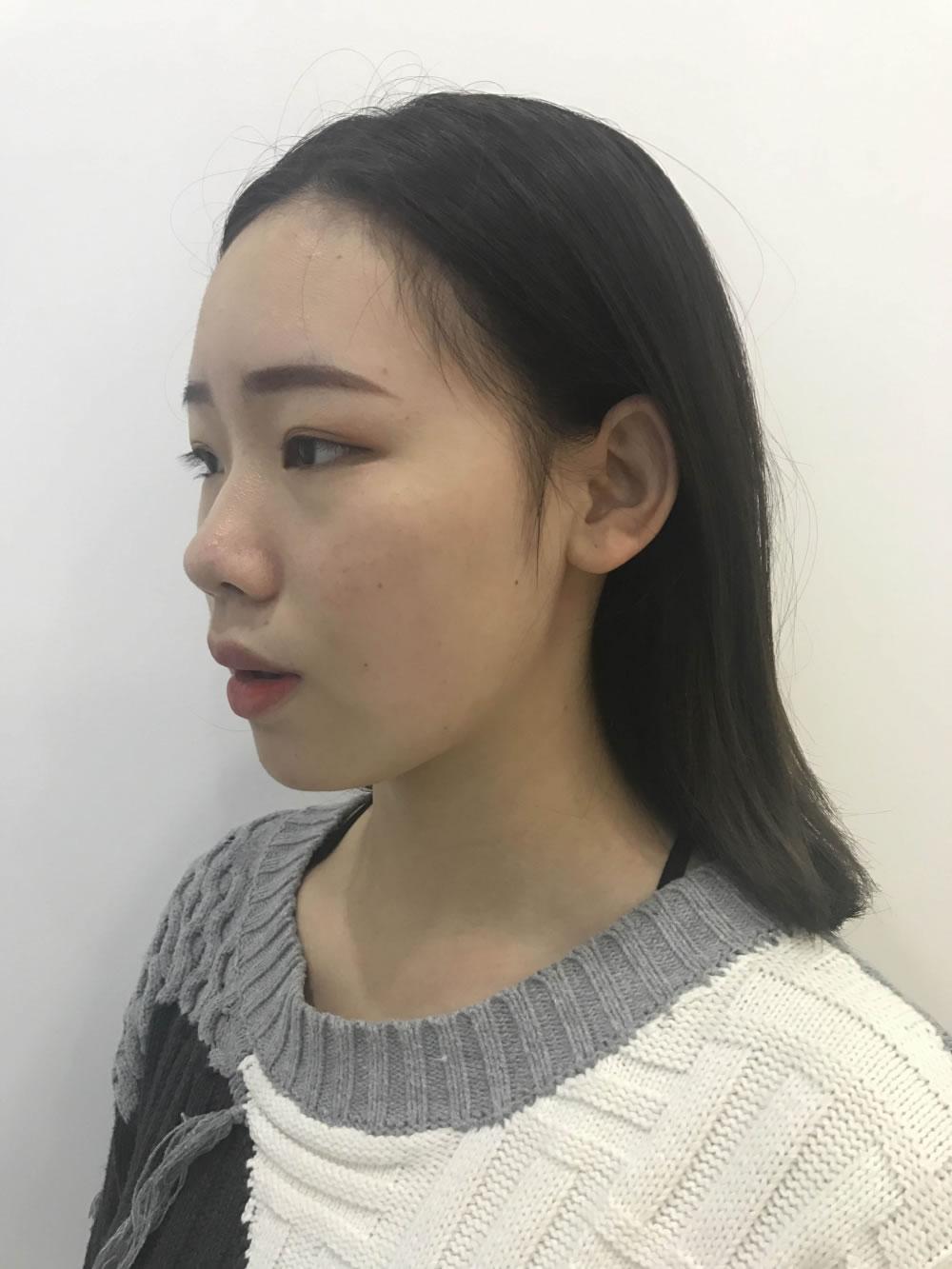 意识自己的鼻子不好看在武汉伊美馨做了鼻综合隆鼻