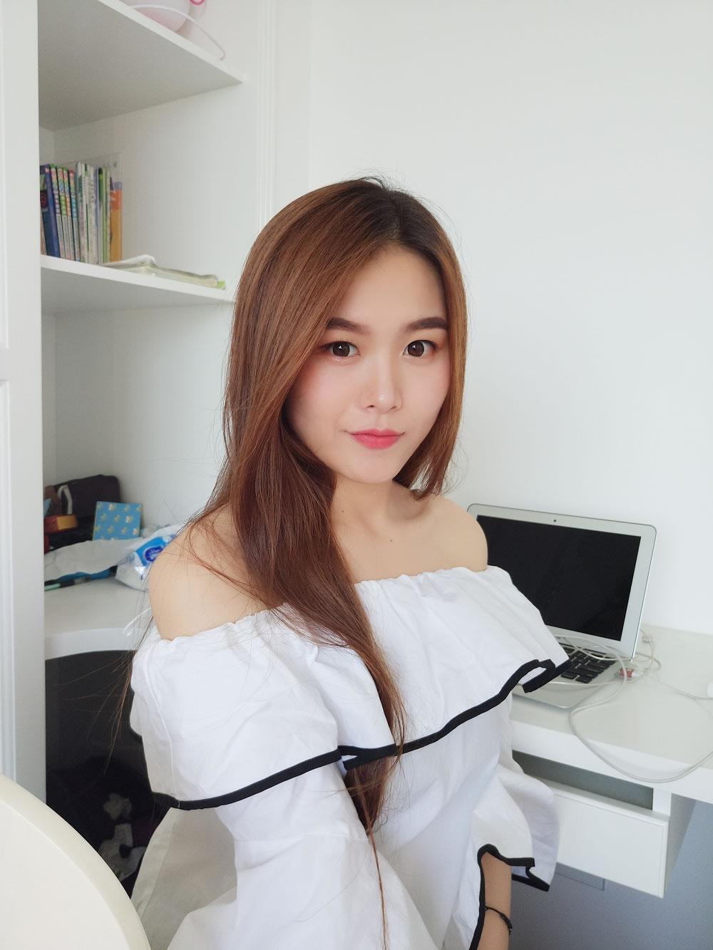 朋友介绍去武汉新至美医疗做的假体隆鼻,美极了