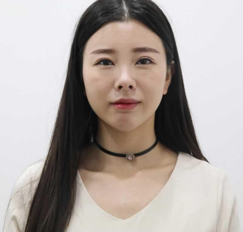 在大郑州做类玻尿酸面部填充隆鼻丰下巴丰唇 恁看中不中