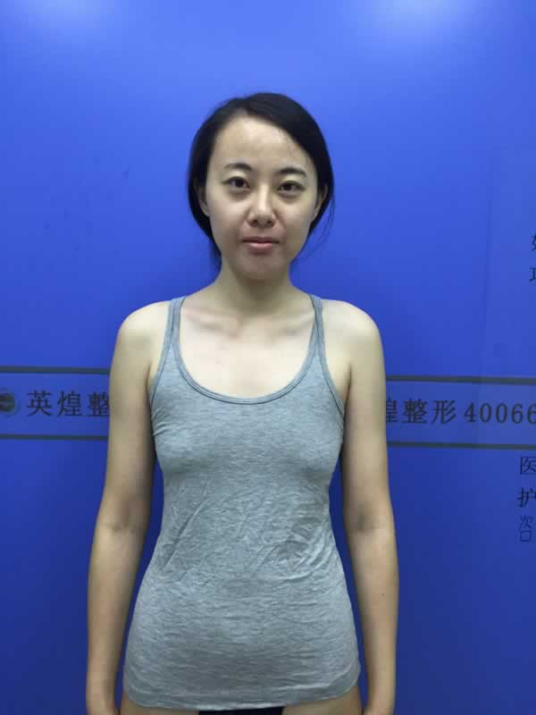 来看俺在北京自体脂肪丰胸案例 自体丰胸多久可以同房?