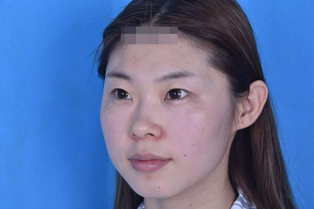 鼻综合都快两个月咯,疤痕的痕迹越来越不明显了